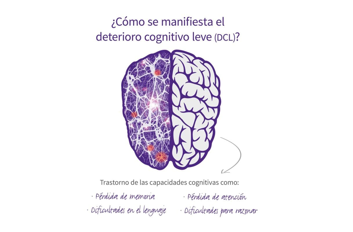 ¿Cómo se manifiesta el deterioro cognitivo?