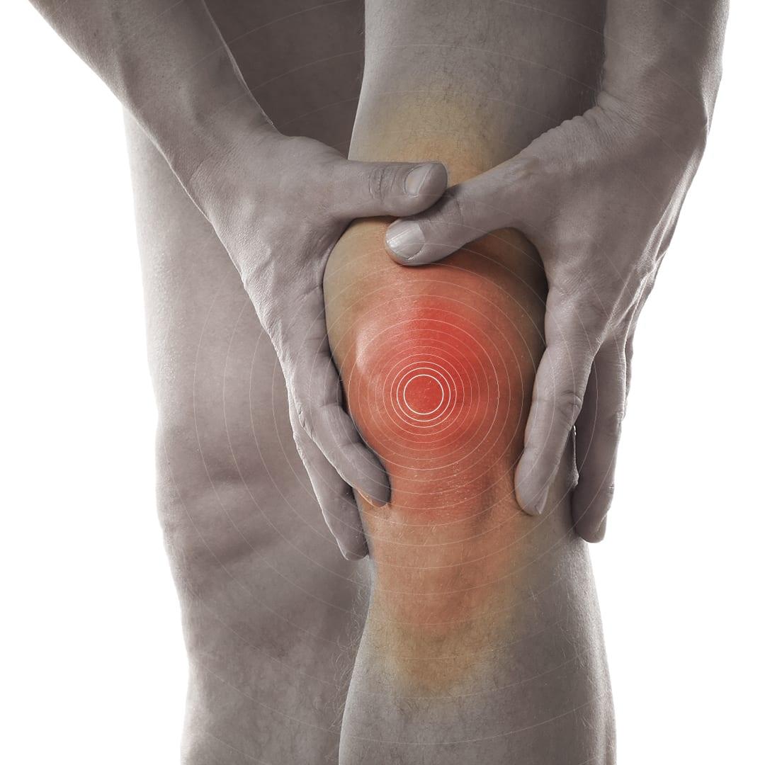 post congreso oafi resultados estudio rodilla artrosis